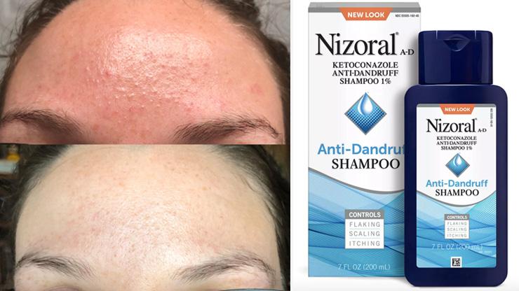 Dandruff Shampoo Face Mask